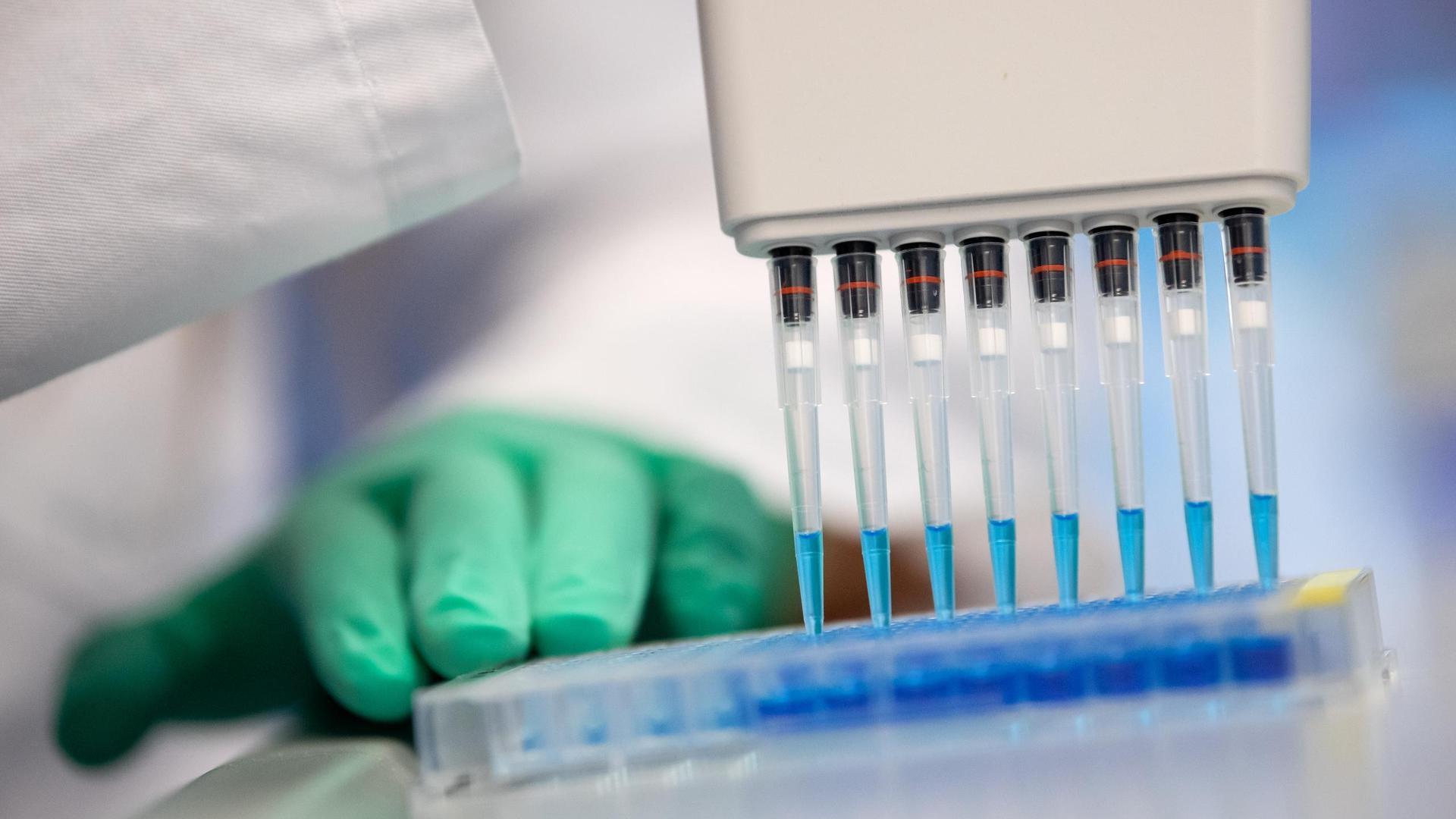 Mit Hochdruck arbeiten Forscher an einem Impfstoff. Doch absolute Klarheit, wann und wie die Coronakrise gelöst werden kann, können Experten derzeit nicht sorgen.