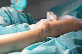 Operation: Für die Behandlung von Krampfadern gibt es verschiedene Methoden. Über die richtige streiten derzeit eine Patientin mit ihrer Ärztin vor dem Karlsruher Landgericht.