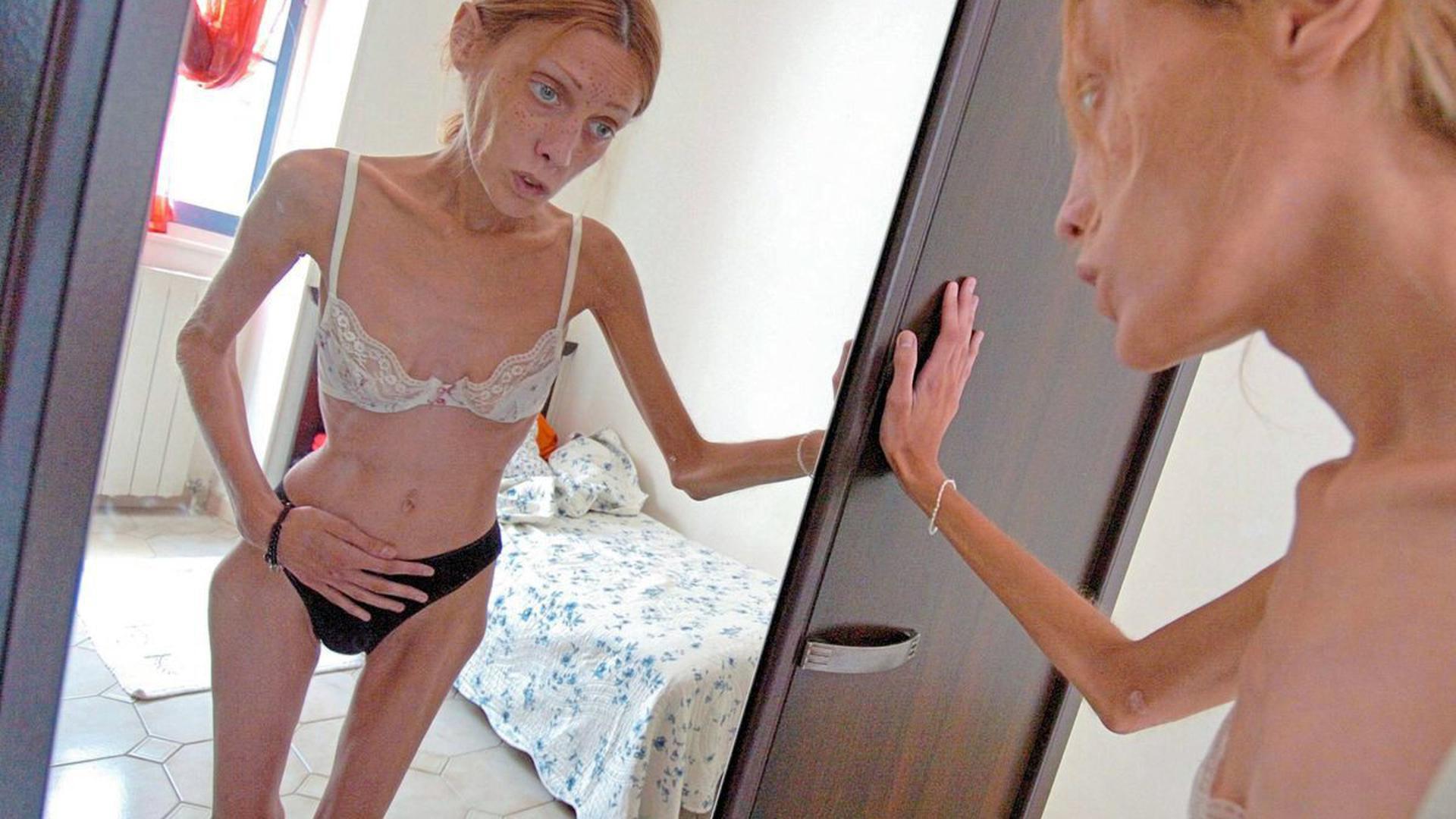 Magersüchtige, wie das verstorbene Model Isabelle Caro, die mit solchen Fotos auf die Krankheit hinweisen wollte, hassen ihren Körper. Sport verschafft ihnen kurzzeitig Linderung. Er kann so aber auch schnell zur Sucht werden.