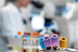 Die Blutproben haben ergeben: Bürger in Mittelbaden haben viel PFC im Blut