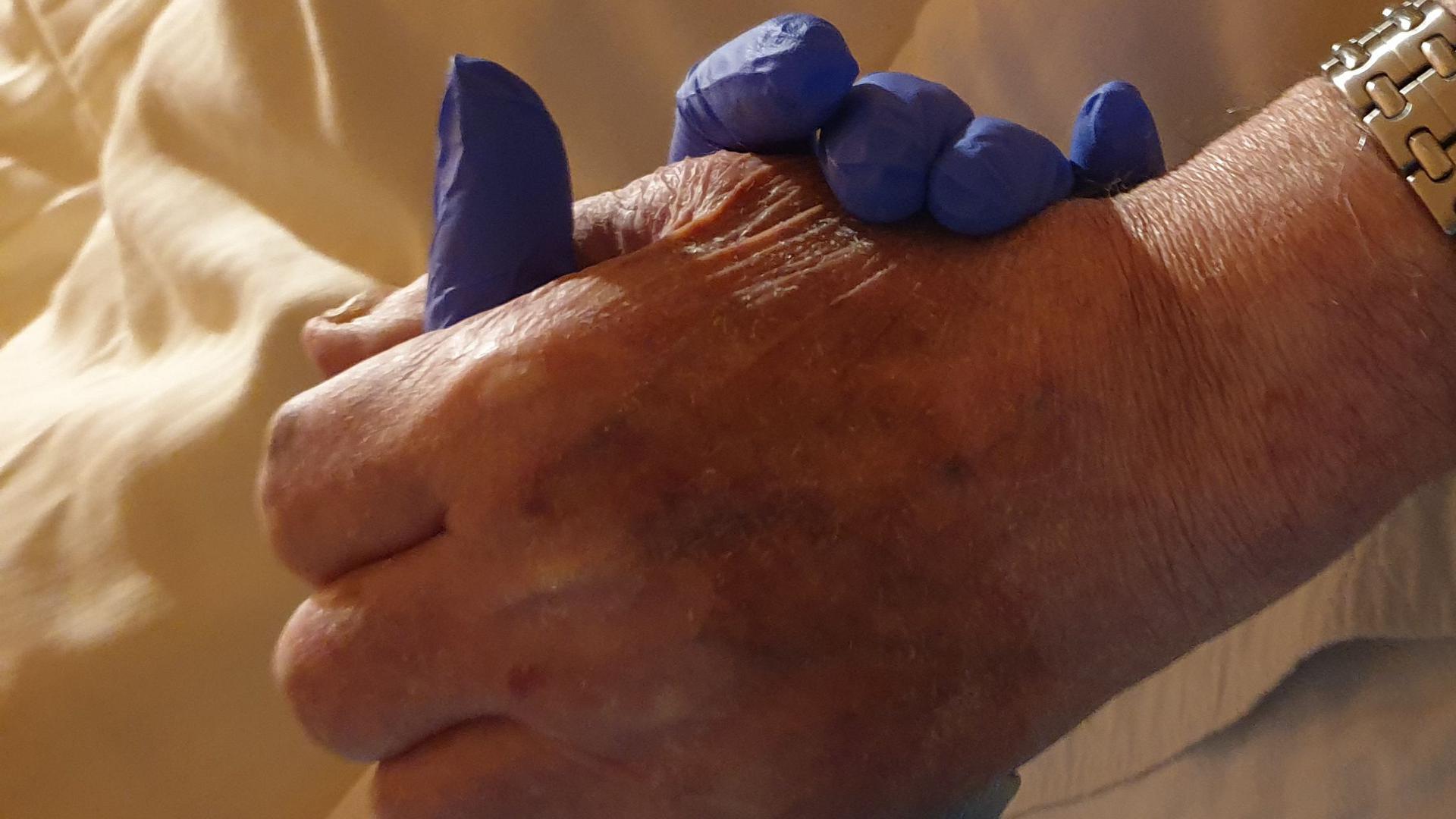 Die Hand von Bettina Oster im blauen Schutzhandschuh umschließt die Hand ihres Vaters.