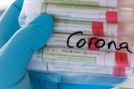Proben für Corona-Tests werden untersucht.
