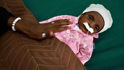 Ein wenige Wochen altes Baby, das an Unterernährung leidet, liegt in einem Krankenhaus in Aden.
