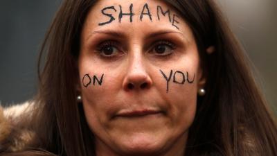 """Eine Frau nimmt an einer Demonstration vor dem New Scotland Yard in London teil und trägt den Schriftzug """"Shame On You"""" auf ihrem Gesicht."""