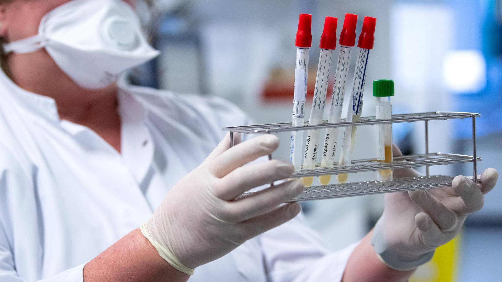 Eine Mitarbeiterin bereitet Proben von Menschen mit Covid-19 Verdacht für die weitere Analyse vor.
