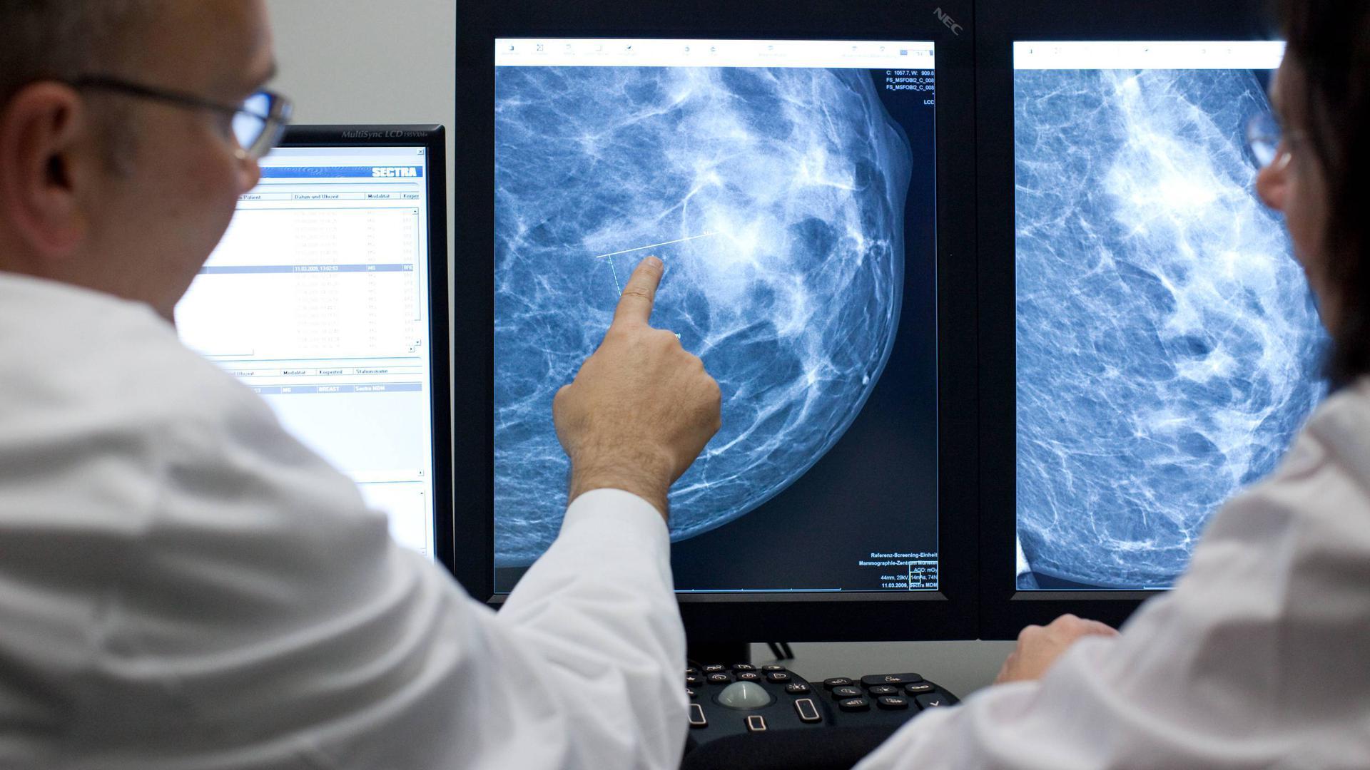 ARCHIV - Der Radiologe Dr. Walter Heindel deutet im Referenzzentrum Mammographie am Universitätsklinikum Münster (UKM) auf eine Auffälligkeit in einer weiblichen Brust, dargestellt auf einem Computermonitor. Die Landesregierung will das landesweite Krebsregister zur Erfassung von Tumorbehandlungen noch vor dem Sommer auf den Weg bringen.  (zu dpa «Umfangreicheres Krebsregister soll Patienten helfen» vom 09.01.2017) Foto: Friso Gentsch/dpa +++(c) dpa - Bildfunk+++   Verwendung weltweit